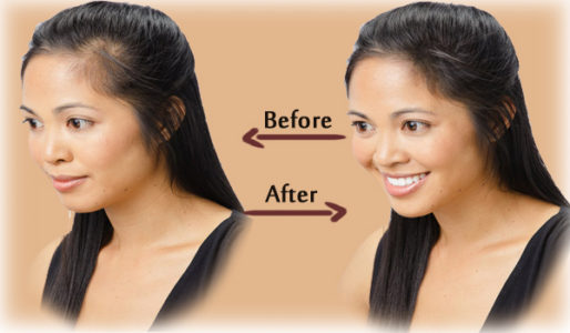 hair-loss-cure-program-review