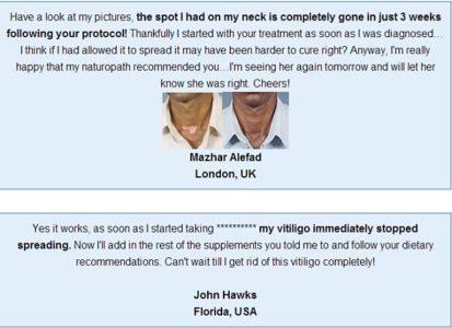 Natural Vitiligo Treatment System Pdf Free